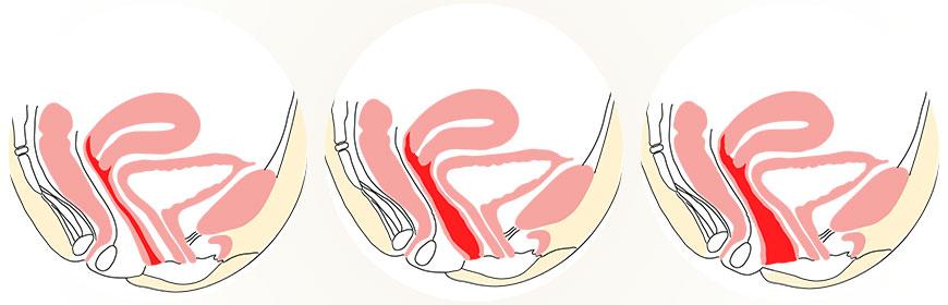 vaginoplastika - zúžení pochvy